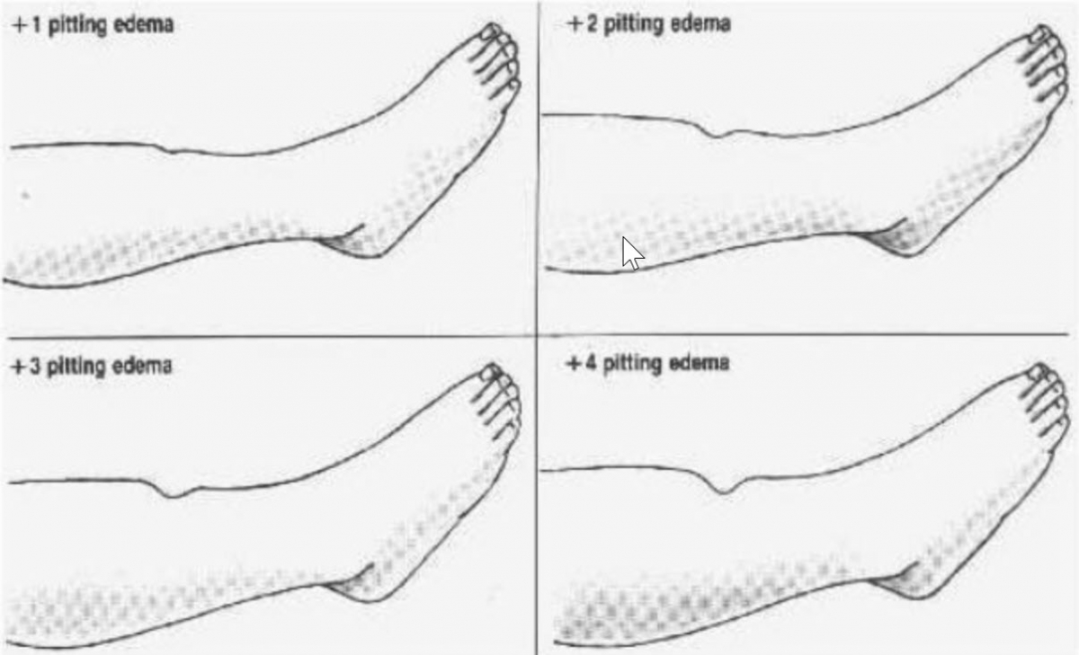 1+ 2+ 3+ Edema Rating Scale? - General Nursing - allnurses