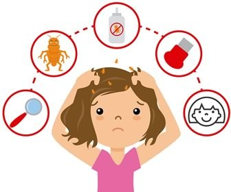 Nurses and Lice: Practical Tips