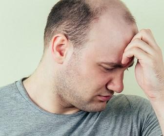 Balding Men at Higher Risk for COVID-19