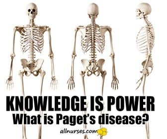 Paget's  Disease of Bone | Knowledge Brush-Up