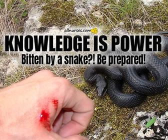 Venomous Snake Bites: Here's What To Do   Knowledge is Power